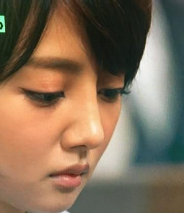 夏菜の鼻の整形画像