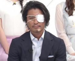山口達也(怪我で眼帯)のZIP画像
