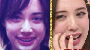 眞木美咲パメラの歯は矯正!