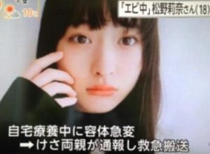 松野莉奈の画像1