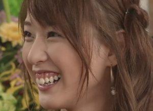 戸田恵梨香の歯茎の画像2