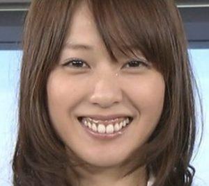 戸田恵梨香の歯茎が黒い画像