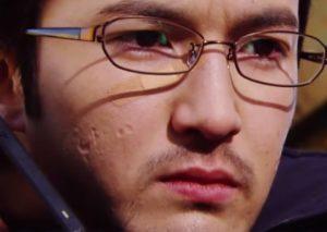 浅利陽介の顔の傷(向かって左側)
