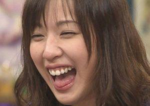 戸田恵梨香の歯茎の画像
