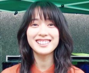 戸田恵梨香のリバース歯茎画像