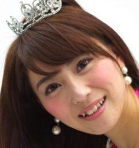 森咲智美の整形前後画像写真