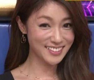 深田恭子の整形画像(2014年オールスター感謝祭)
