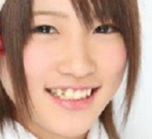 川栄李奈の画像(昔)整形前の歯並び