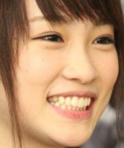 川栄李奈の現在の画像(歯並び)