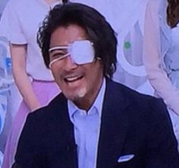 山口達也の眼帯怪我の画像ZIP