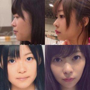 指原莉乃画像(整形前後比較写真)顔が変わった2