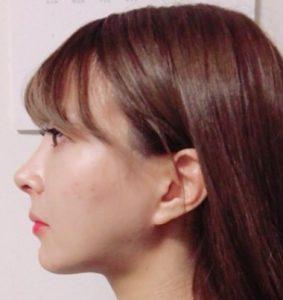 明治アイドル画像写真鼻の整形1ヶ月後の様子