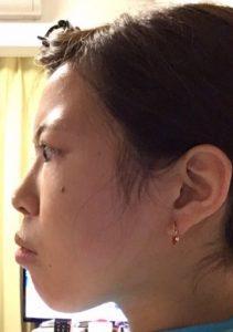 明治アイドル画像写真鼻の整形前