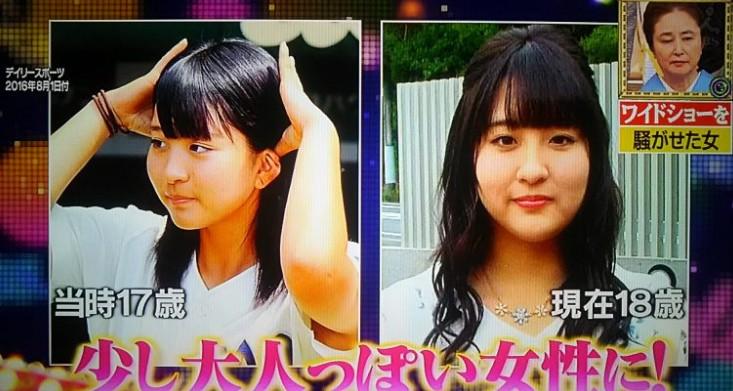 首藤桃奈の現在の画像(大分高校のマネージャー)過去比較
