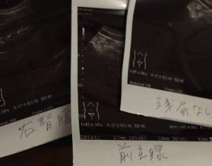 前立腺写真エコー検査